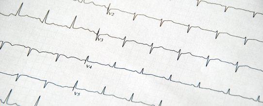 Kardiologie-Garbsen-Leistung-EKG-Aufzeichnung